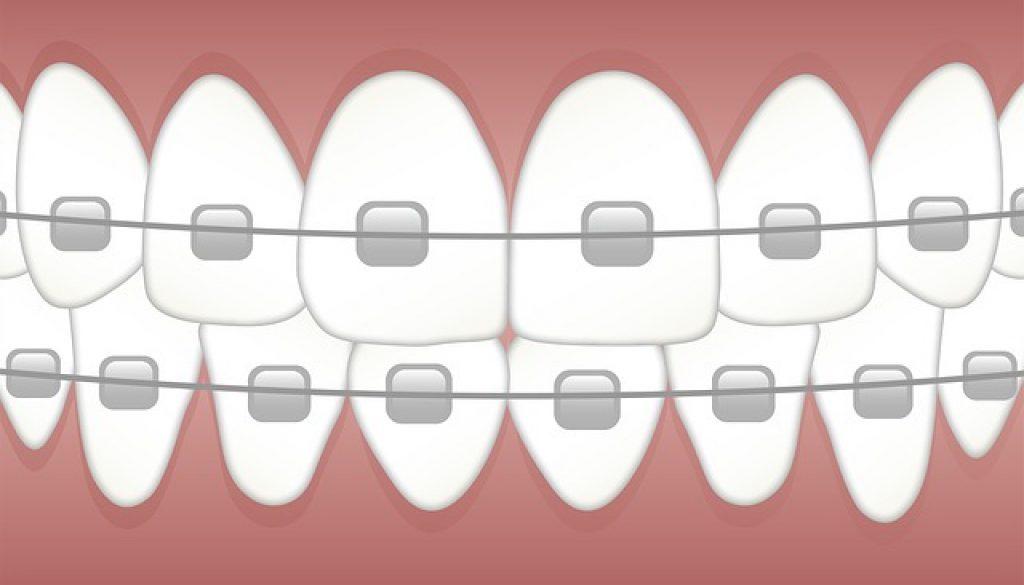 braces-3597591_640